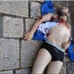 שלושה שוטרים פצועים בפיגוע דקירה  בירושלים