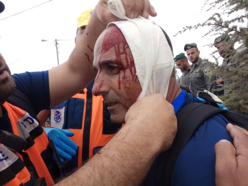 שוטרים נפצעו בפינוי נתיב האבות