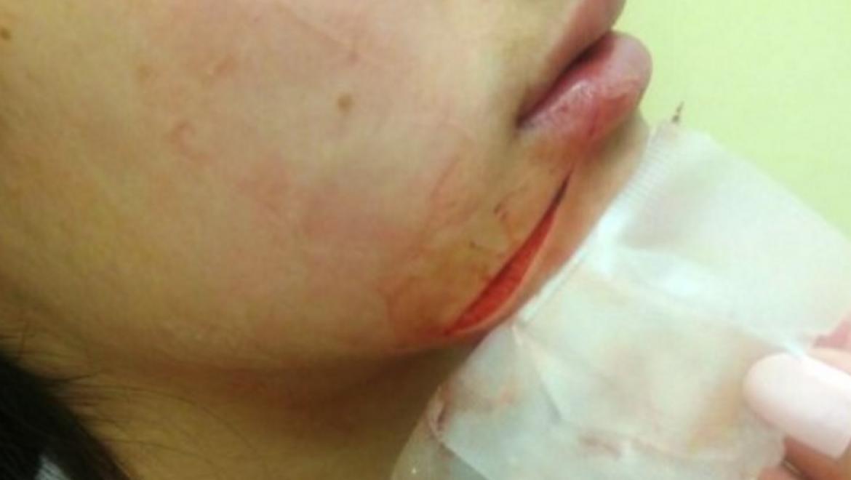פני ילדה בת 11.5 הושחתו בידי חרדי שטען כי היא שיקסע