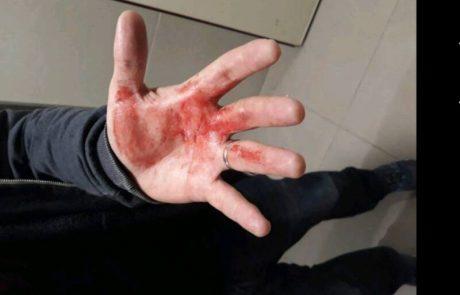 """עורבים תוקפים בבאר יעקב: """"קיבלתי מכה בראש, היד התמלאה דם"""""""
