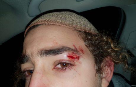 חמישה שוטרים נפצעו במהלך הפינוי הבוקר בעמונה