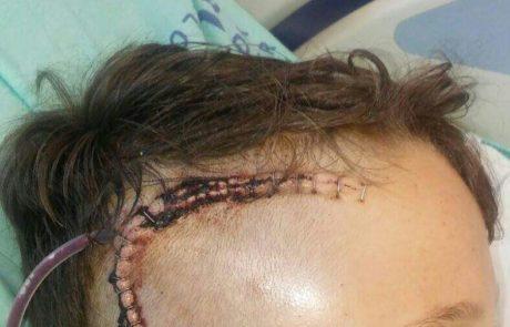 ילד בגיל 11.5 נחבל בראשו במהלך נסיעה על הובר בורד