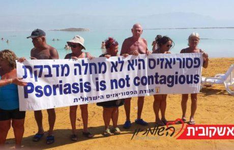יום המודעות הבינלאומי למחלת הפסוריאזיס